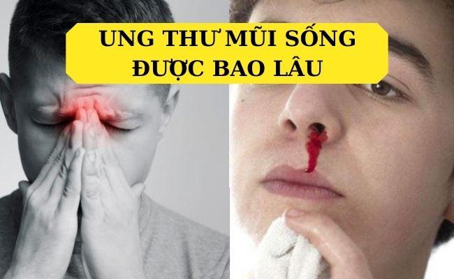 Mắc bệnh ung thư mũi sống được bao lâu