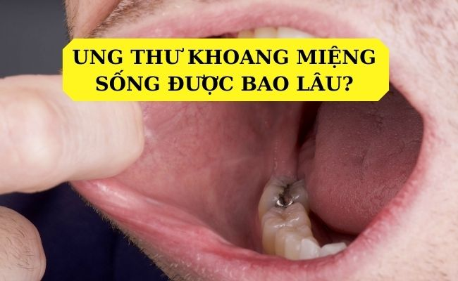 Mắc bệnh ung thư khoang miệng sống được bao lâu?