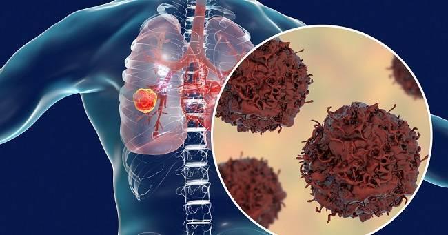 Một vài thông tin liên quan tới việc bệnh ung thư phổi có lây không?