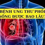 Ung thư phổi có lây không?